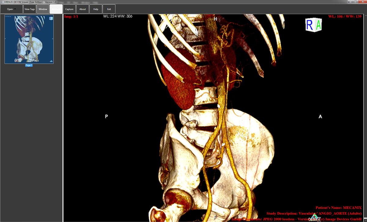 Click to view ORPALIS DICOM Viewer Free screenshots